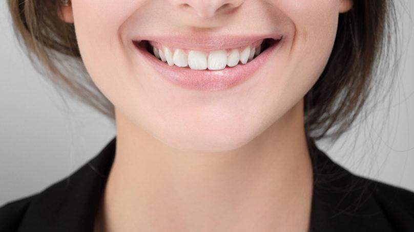 Jak wybielać zęby i nie uszkodzić szkliwa?